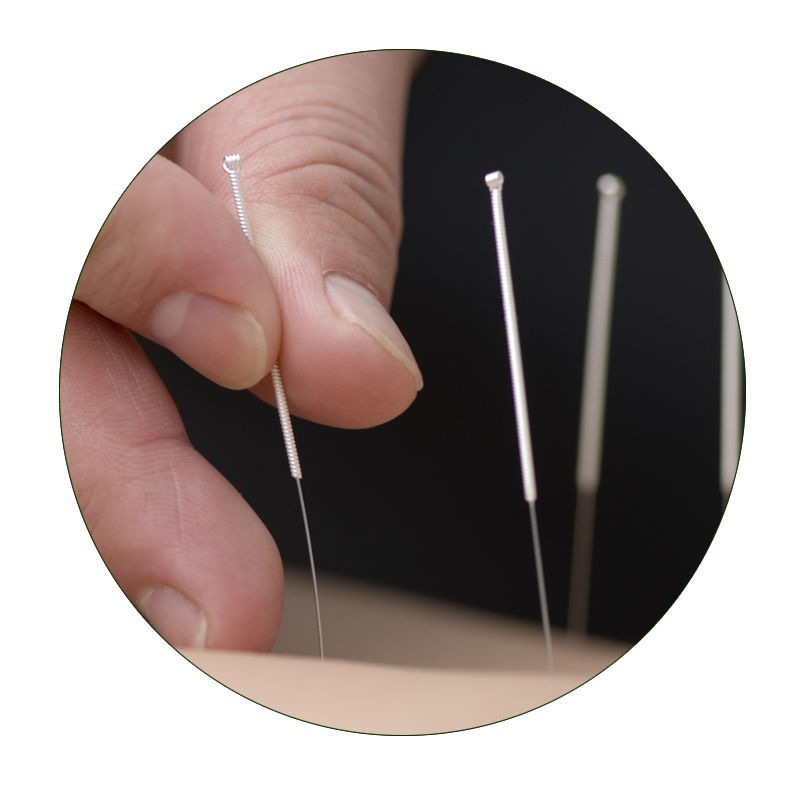 acupuncture b